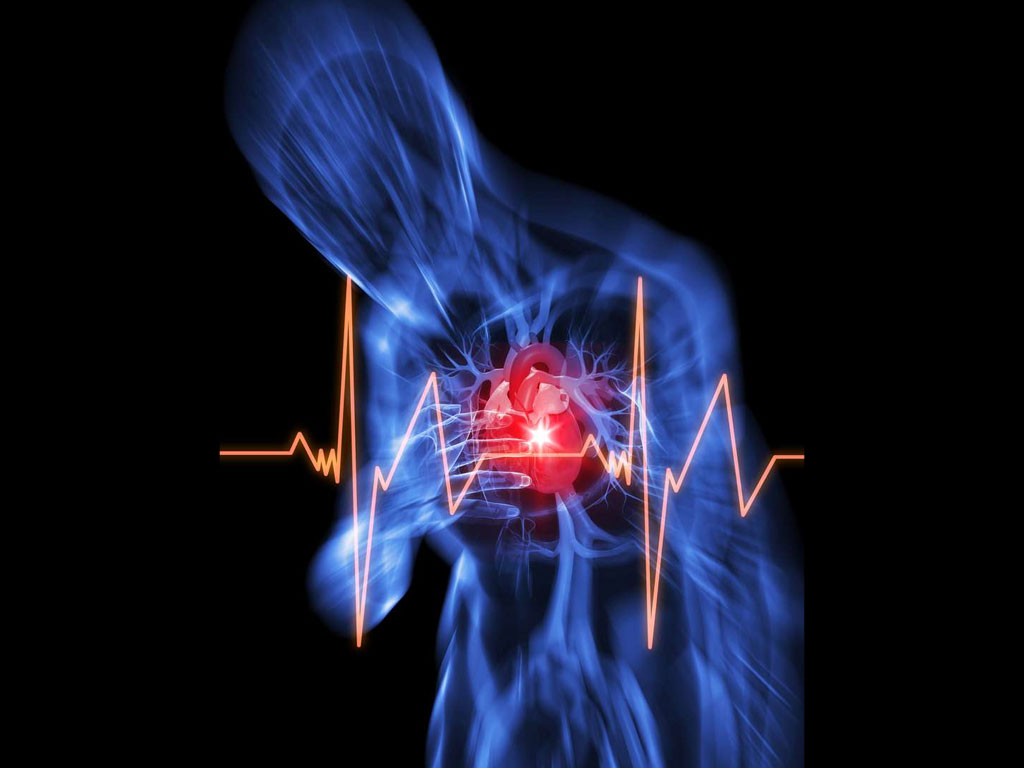 How To Reduce The Risk Of Second Heart Attack?